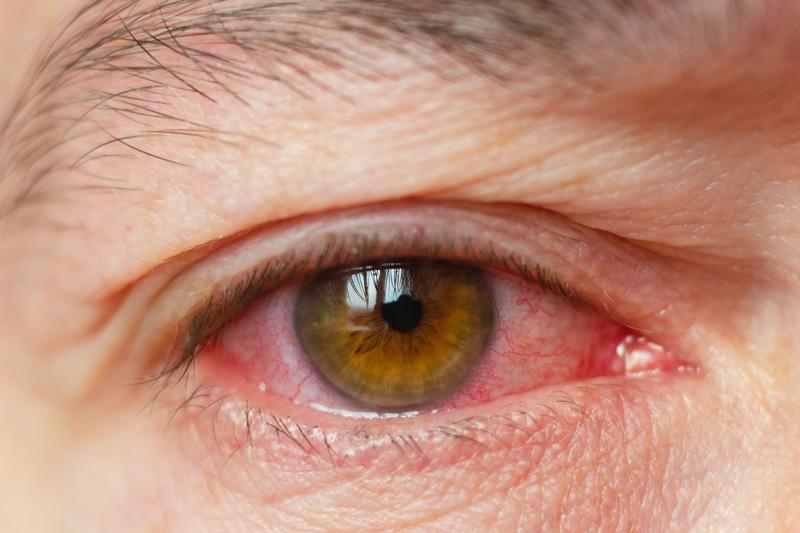 Uramlasmosis a férfiakban: a fertőzés, a tünetek és a kezelés okai. Tünetek Ureplasma férfiakban
